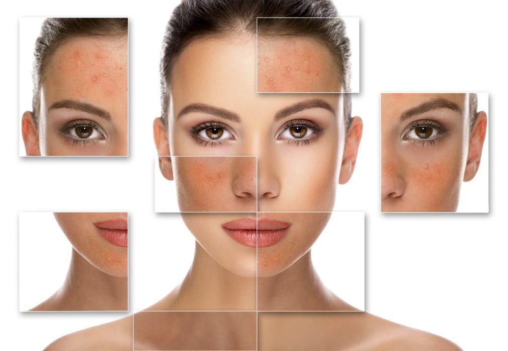 tipi di pelle